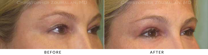 Upper Lid Blepharoplasty Before & After Photo - Patient Seeing Side - Patient 41B