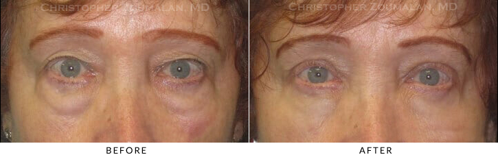Upper Lid Blepharoplasty Before & After Photo -  - Patient 42