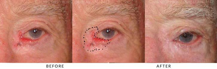 Eyelid Skin Cancer Excision Before & After Photo - Patient Seeing Straight - Patient 4