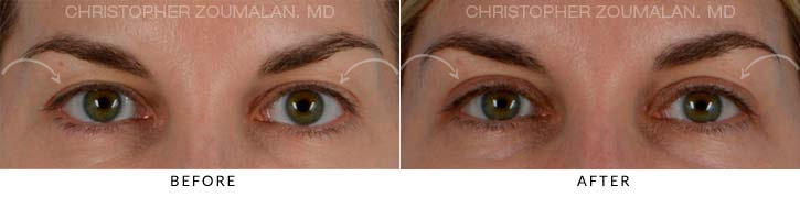 Upper Lid Blepharoplasty Before & After Photo - Patient Seeing Straight - Patient 4A