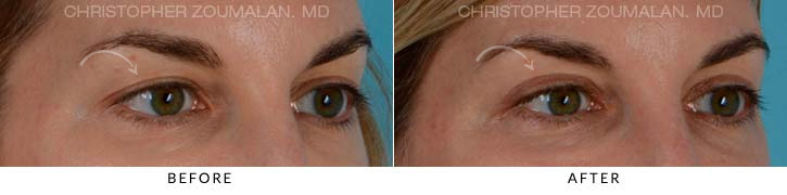 Upper Lid Blepharoplasty Before & After Photo - Patient Seeing Side - Patient 4B