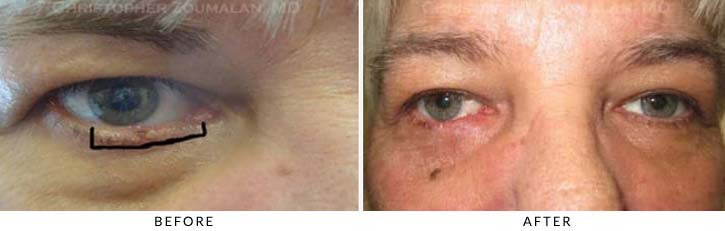 Eyelid Skin Cancer Excision Before & After Photo - Patient Seeing Straight - Patient 5