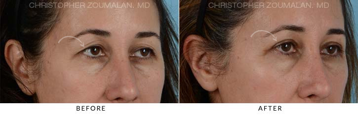 Upper Lid Blepharoplasty Before & After Photo - Patient Seeing Side - Patient 5A