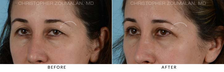 Upper Lid Blepharoplasty Before & After Photo - Patient Seeing Side - Patient 5B
