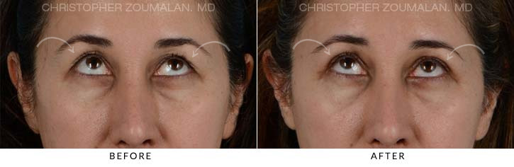 Upper Lid Blepharoplasty Before & After Photo - Patient Seeing Up - Patient 5C