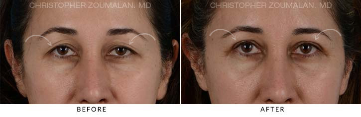 Upper Lid Blepharoplasty Before & After Photo - Patient Seeing Straight - Patient 5D