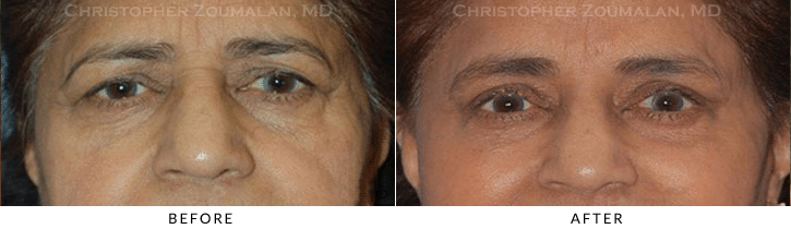 Upper Lid Blepharoplasty Before & After Photo -  - Patient 67