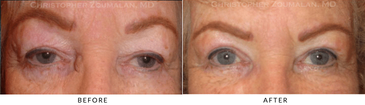 Upper Lid Blepharoplasty Before & After Photo -  - Patient 68