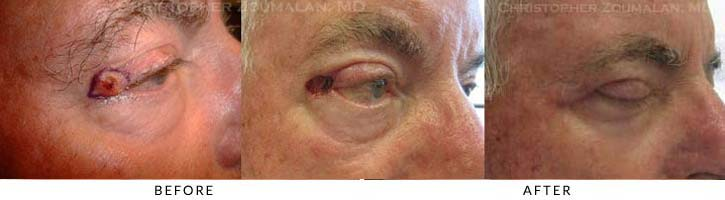 Eyelid Skin Cancer Excision Before & After Photo - Patient Seeing Side - Patient 6