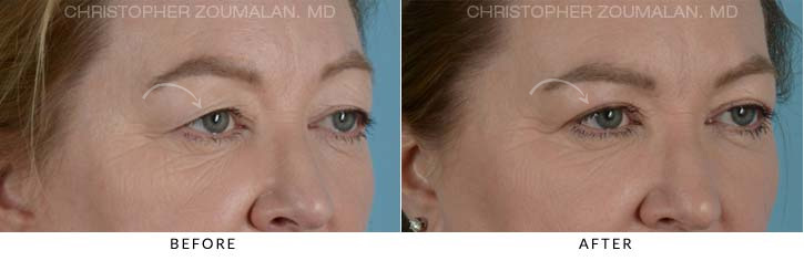 Upper Lid Blepharoplasty Before & After Photo - Patient Seeing Right - Patient 6A
