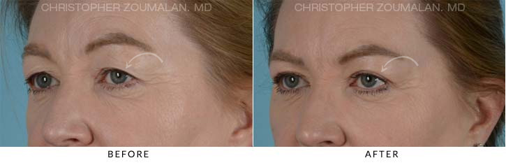Upper Lid Blepharoplasty Before & After Photo - Patient Seeing Left - Patient 6B