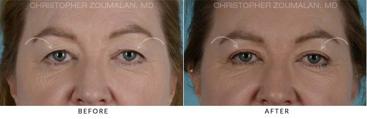 Upper Lid Blepharoplasty Before & After Photo - Patient Seeing Straight - Patient 6C