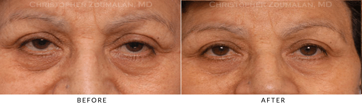 Upper Lid Blepharoplasty Before & After Photo -  - Patient 69