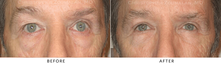 Upper Lid Blepharoplasty Before & After Photo -  - Patient 70
