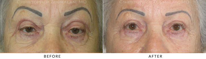 Upper Lid Blepharoplasty Before & After Photo -  - Patient 71
