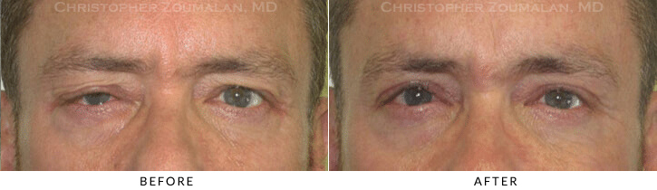 Upper Lid Blepharoplasty Before & After Photo -  - Patient 72
