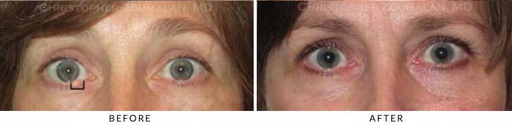 Eyelid Skin Cancer Excision Before & After Photo - Patient Seeing Straight - Patient 7