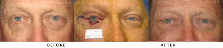 Eyelid Skin Cancer Excision Before & After Photo - Patient Seeing Straight - Patient 8