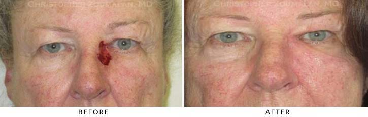 Eyelid Skin Cancer Excision Before & After Photo - Patient Seeing Straight - Patient 9