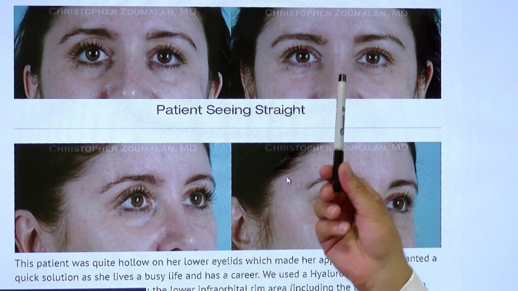 non surgical blepharoplasty procedure