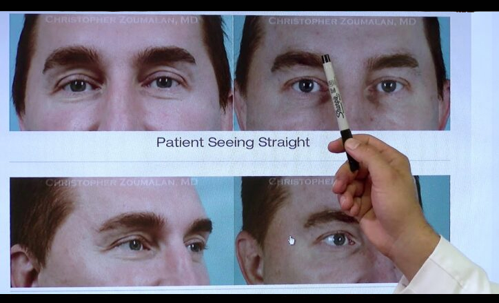 Injectable Fillers to the Upper Eyelids - Click to see video