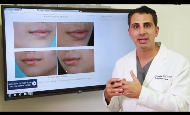 Lip Augmentation Video