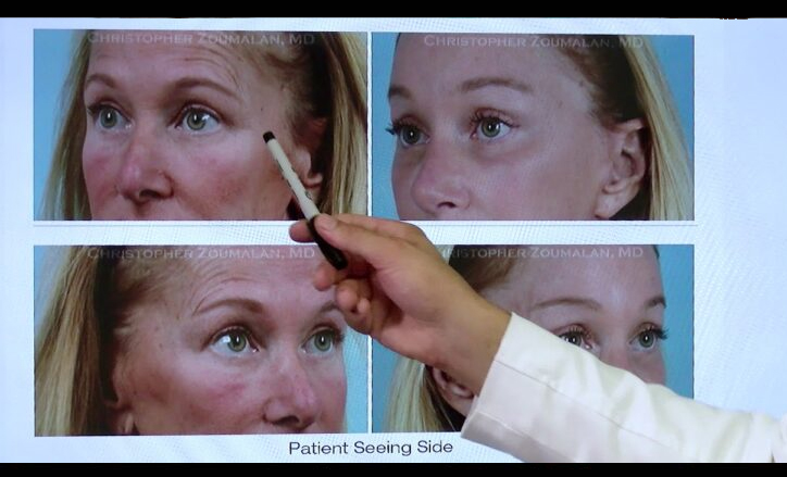 Laser Resurfacing Video