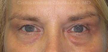 Combining Cosmetic Eyelid Fillers