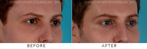 FILLERS TO TREAT LOWER EYELID HOLLOWING