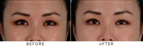 FILLERS TO UPPER LIDS