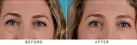 REVISIONAL EYELID SURGERY