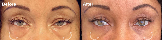 Lower eyelid Blepharoplasty before and after picture of a patient