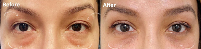 Upper and lower Blepharoplasty before and after picture of a patient
