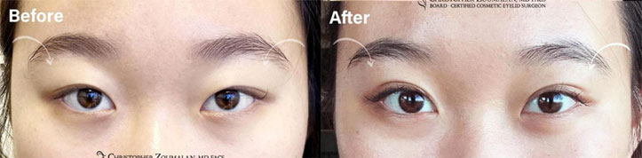 Beautiful before and after picture of an UPPER LID BLEPHAROPLASTY AND PTOSIS REPAIR