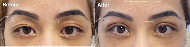 A beautiful asian eyelid surgery transformation - female patient before and after picture
