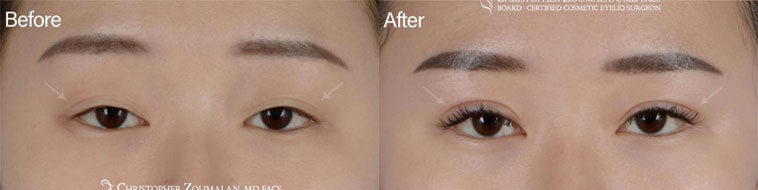 Beautiful Asian eyelid surgery done in our office under local anesthesia - Female Patient before and after picture