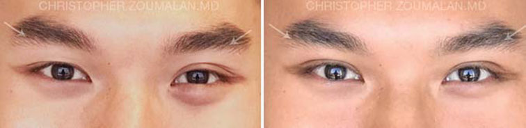 Asian eyelid surgery - male patient before and after picture