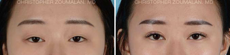 Lower lid blepharoplasty using Natural Looking Blepharoplasty Technique - female Patient before and after picture