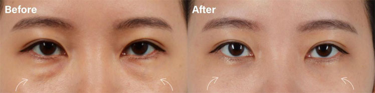 Beautiful lower eyelid blepharoplasty with fat repositioning result in a young female patient before and after picture