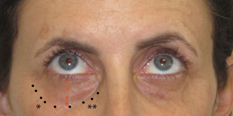 Volume loss appears as hollowing, which is usually seen along the infraorbital rim, which is the bone below the lower eyelids - female patient picture