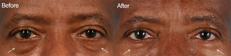 Prominent under eye fat pockets can be dramatically improved with an eyelid blepharoplasty procedure - male patient before and after picture