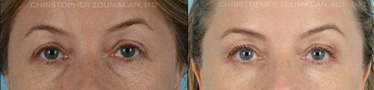 Notice the improvement after removal of lower lid fat pockets through a lower lid blepharoplasty - female patient before and after picture