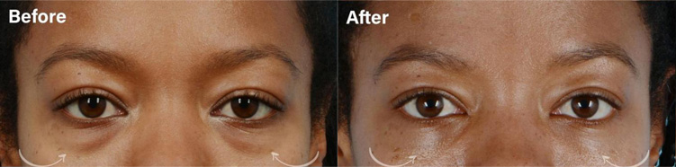 LOWER EYELID BLEPHAROPLASTY WITH FAT REPOSITIONING - female patient before and after picture
