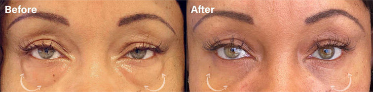 Under eye rejuvenation through a LOWER EYELID BLEPHAROPLASTY WITH FAT REPOSITIONING - female patient before and after picture