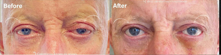 Before and after picture of ptosis surgery to improve droopy lids