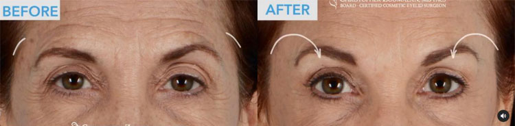 Beautiful upper eyelid and brow enhancement from an endoscopic brow lift, and upper eyelid blepharoplasty, and CO2 laser to the lower eyelids - female patient before and after picture