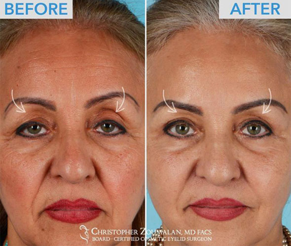 Skin only blepharoplasty combined with a Ptosis repair to open up her droopy eyes - female patient before and after picture