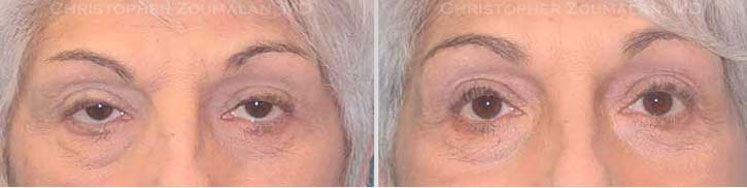 upper eyelid ptosis repair surgery - female patient before and after picture