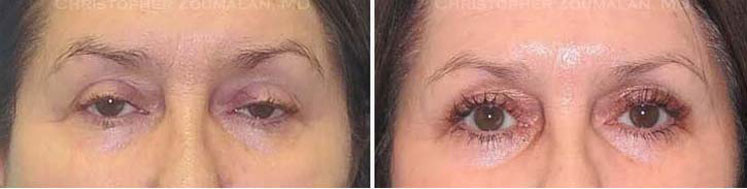 A minimally invasive ptosis repair (posterior approach) was performed to help elevate her lids and to allow her to see better - female patient before and after picture