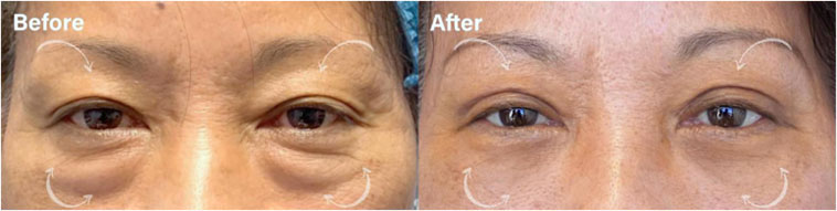 Beautiful UPPER EYELID BLEPHAROPLASTY to improve excess upper lid skin. - male patient before and after picture